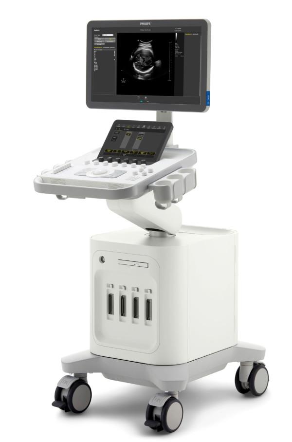 Ultrassom Philips 3300 - Direita