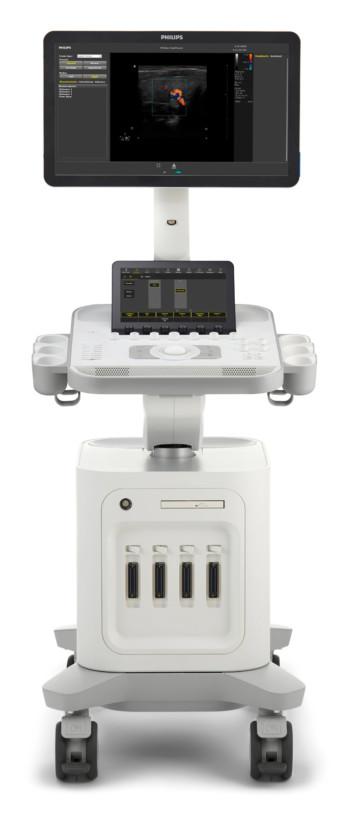 Philips Ultrassom 3300 Especificações Técnicas